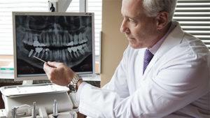 Прицельный рентгеновский снимок