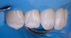 Имплантация эмали зубов
