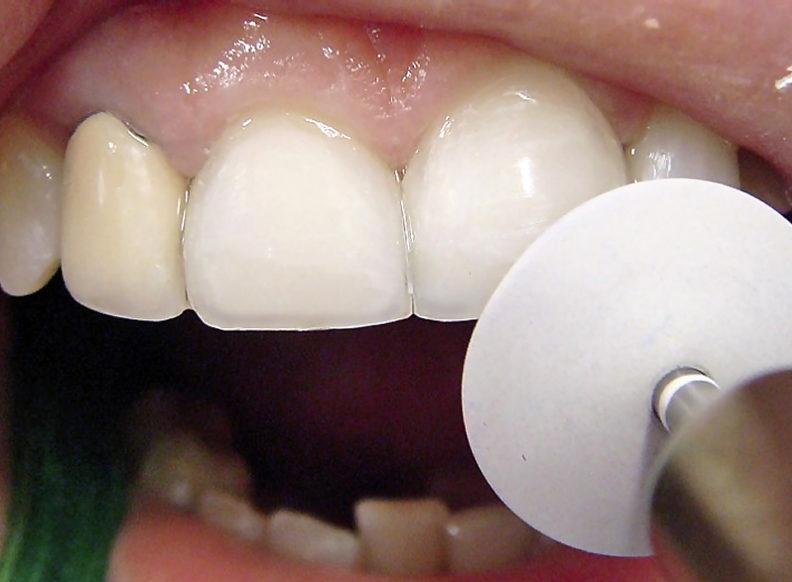 Контурирование зубов