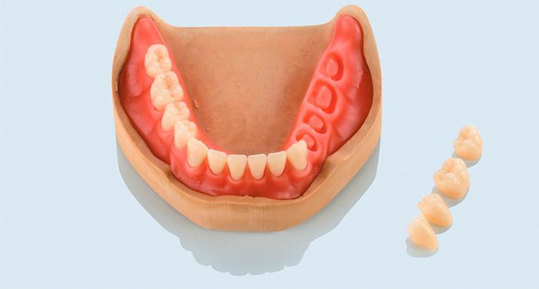 Базис зубного протеза