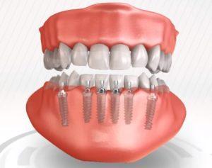 Имплантация зубного ряда