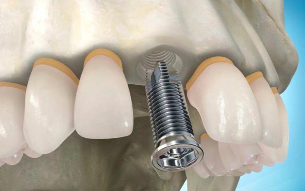 Имплантация одной зубной единицы