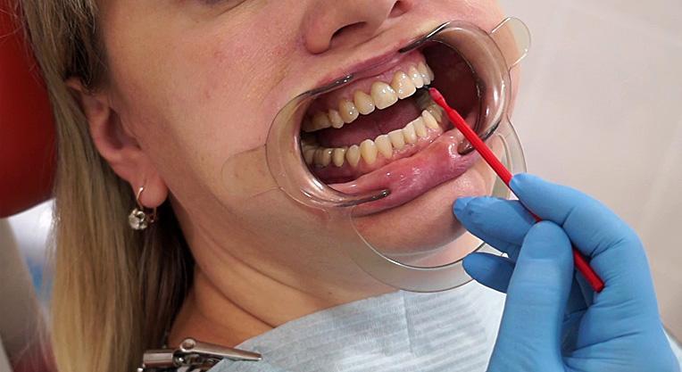 Нанесение фтора на зубы