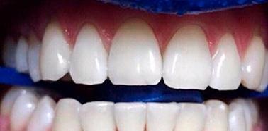 После отбеливания зубов Зум 4