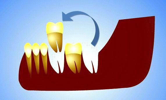 Реплантация зуба