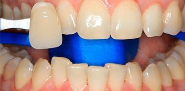До отбеливания зубов Зум 4