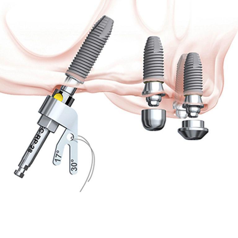 All-on-4 Норрис Implants