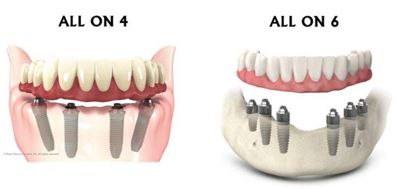 Различия между All on 4 и All on 6