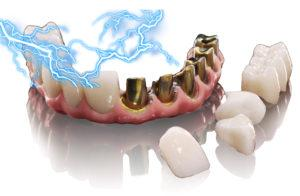 Гальванизм в полости рта
