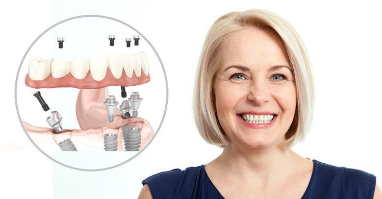 Имплантация зубов All on 4