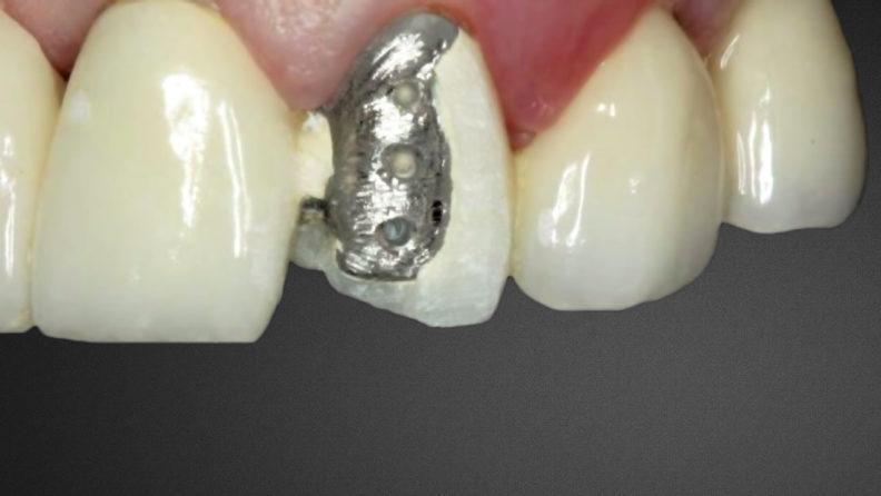 Реставрация коронки из металлокерамики
