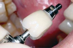 Слетела коронка с импланта