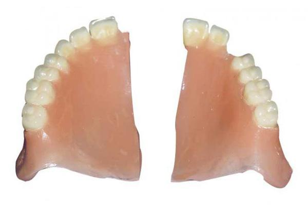 Сломался зубной протез