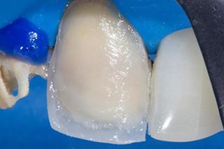 Прямая композитная реставрация зубов