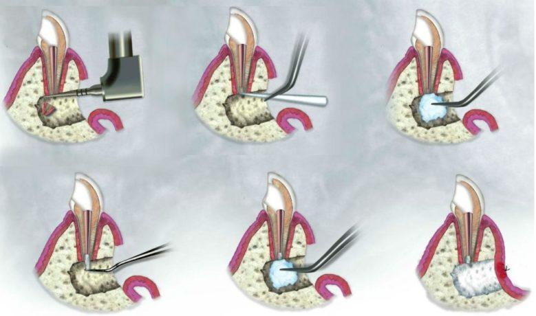 Резекция верхушек корней зубов