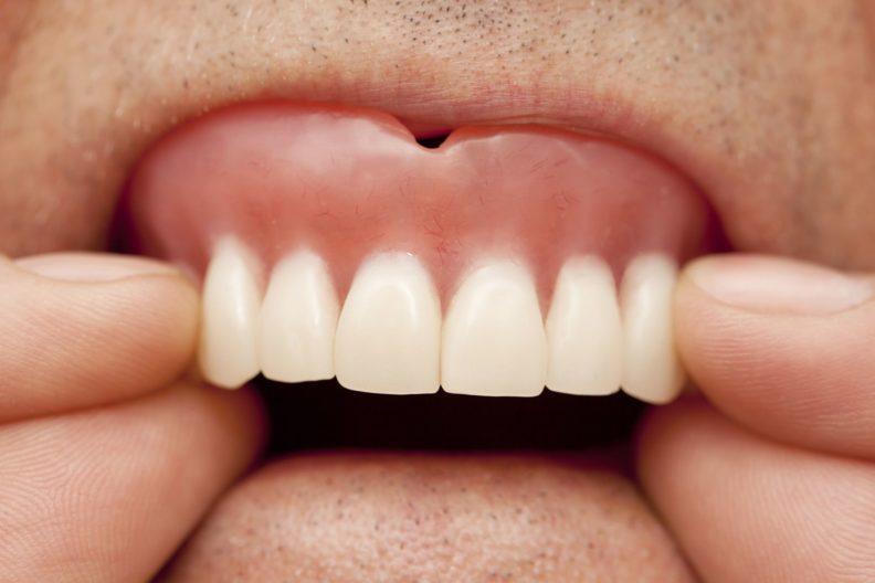 Шатается зубной протез
