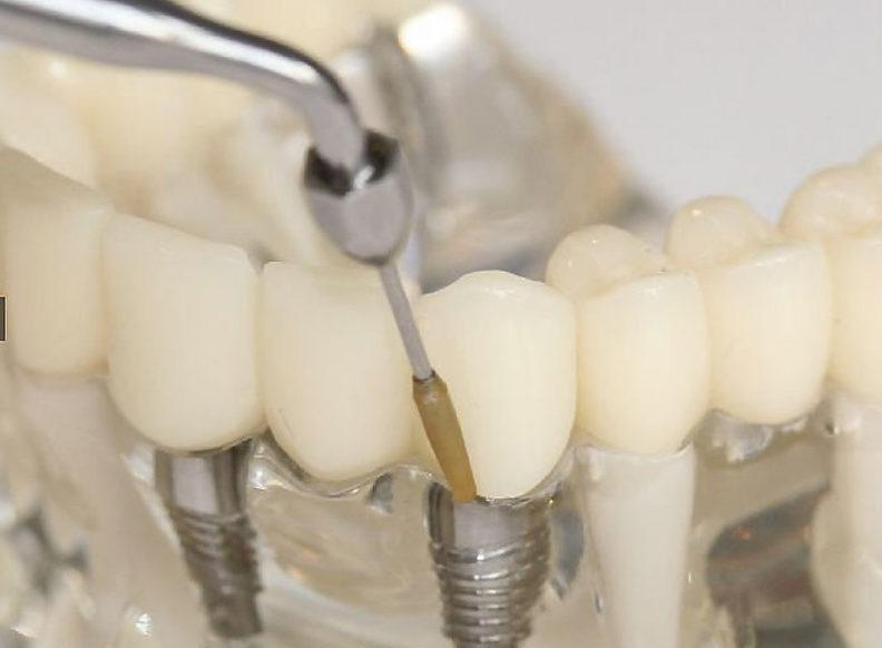 Ультразвуковая имплантация зубов