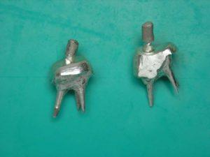 Культевые вкладки из серебра на зубы