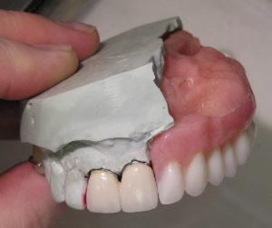 Протезирование при дефектах верхней челюсти