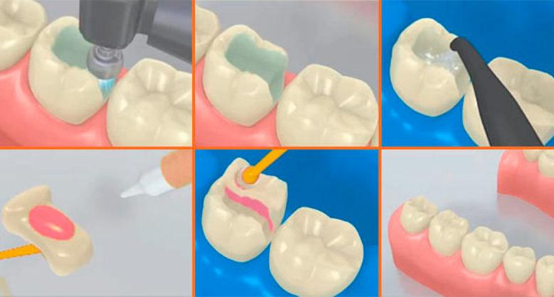 Этапы пломбирования зубов