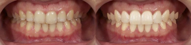 Реставрация зуба виниром – прямым методом Gradia Direct