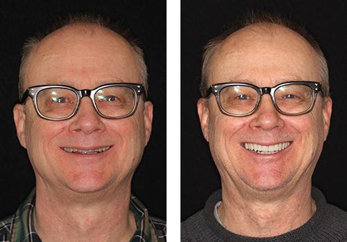 До и после исправления прикуса