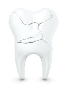 Трещины зуба