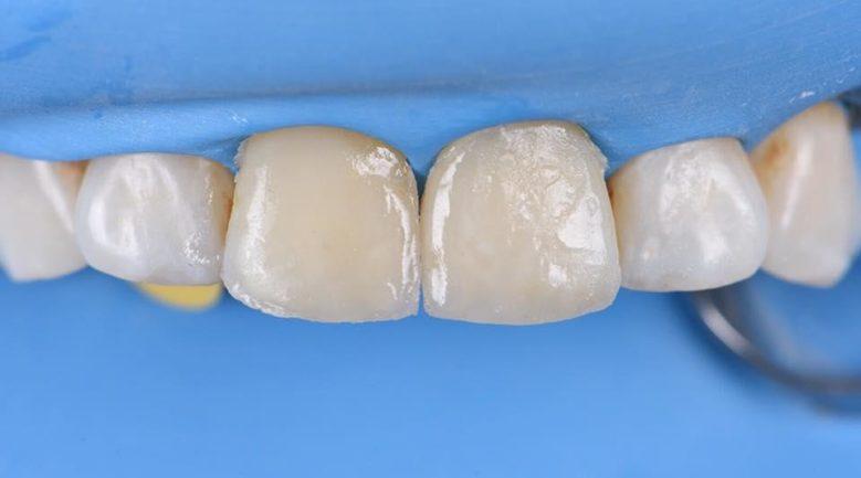 Реставрация зубов Estelite Asteria
