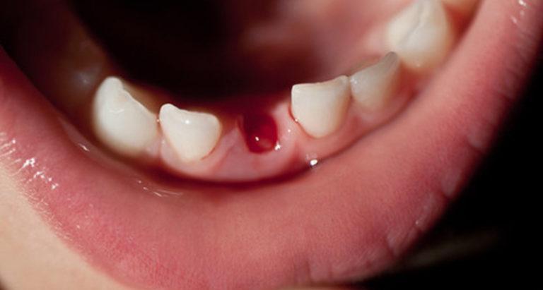 Чешутся десны после удаления зуба
