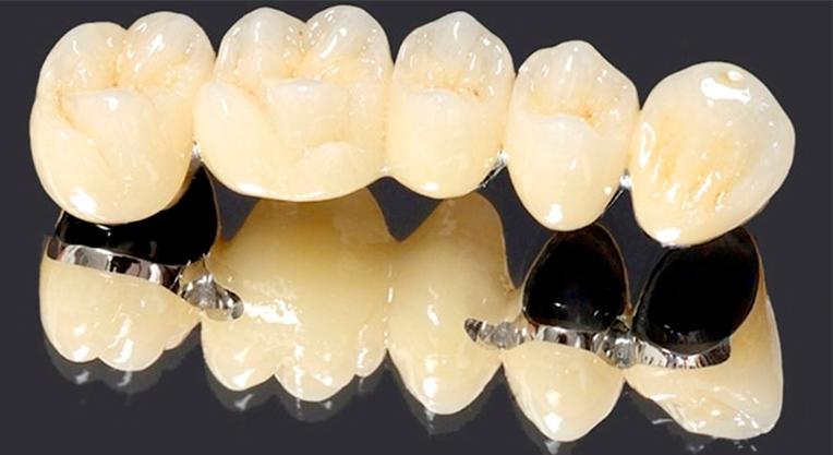 Преимущества и недостатки установки зубных мостов