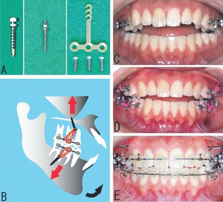 Ортодонтические импланты