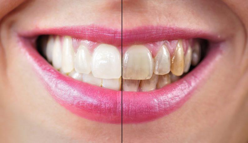 Результат ультразвуковой чистки (до и после)