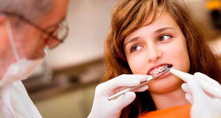 Стоматолог-ортодонт: кто это и что лечит?