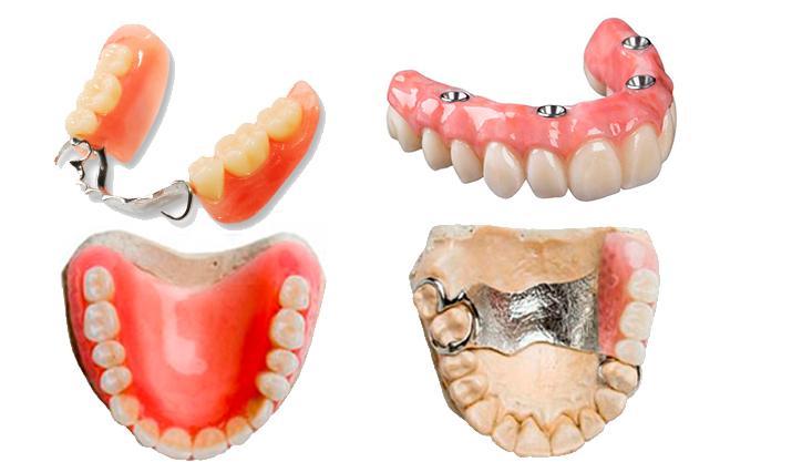 Четыре лучших съемных зубных протеза