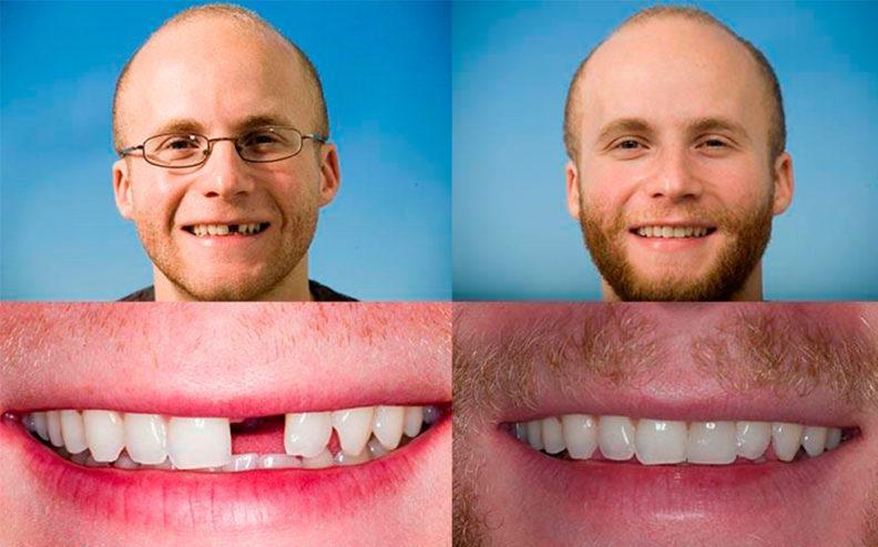 Имплантация Implantium до и после