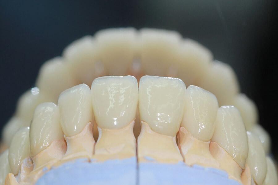 Картинки циркониевые зубы