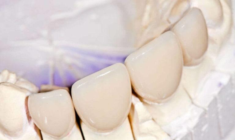 Фарфоровая зубная коронка