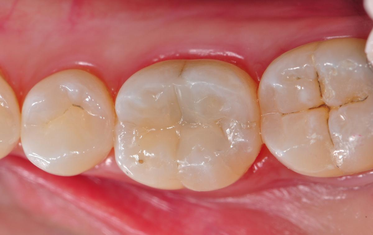 картинка пломба для зуба каждом