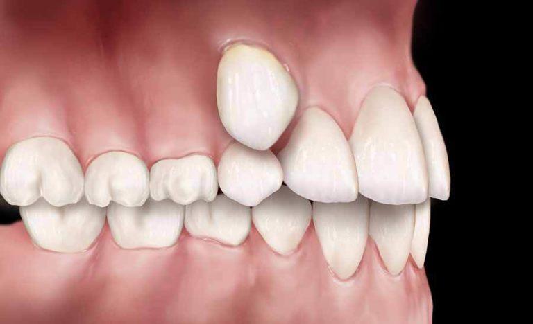 Дистопический прикус зубов