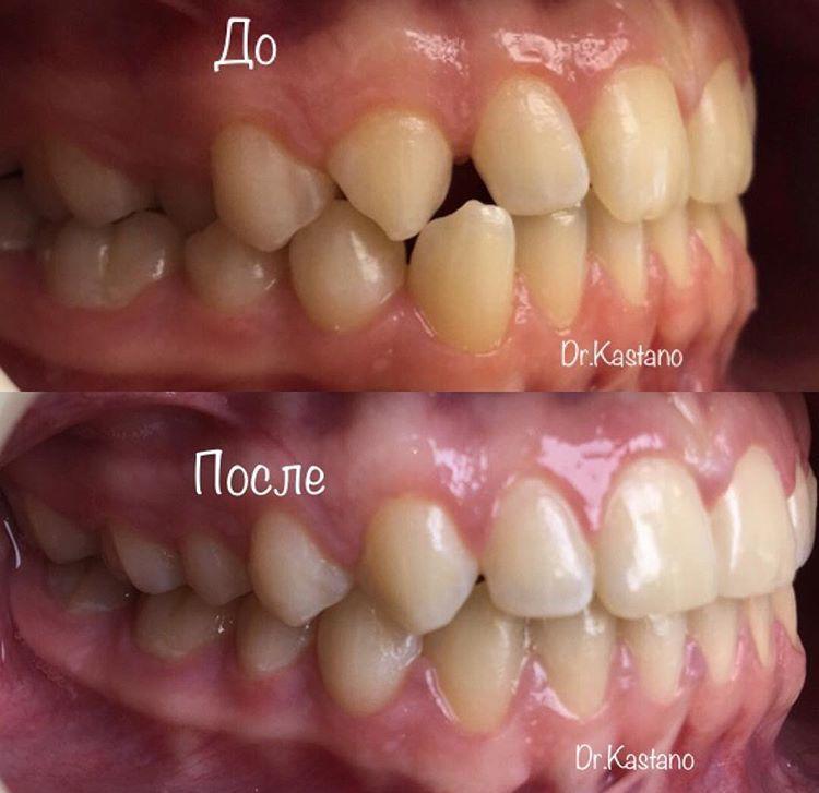 2 случай: небное положение зуба 2.4, смещение косметического центра. Лечение на брекетах.