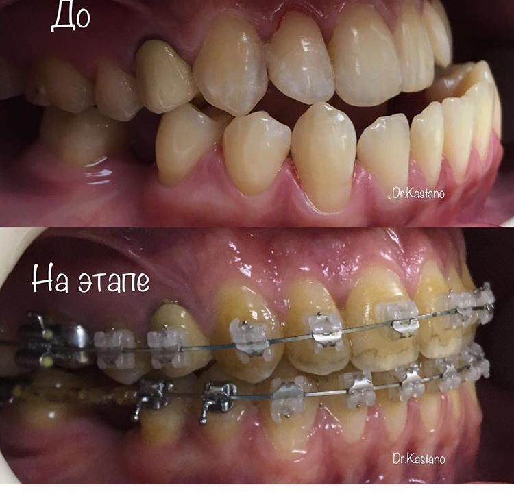 1 случай: гнатическая форма мезиальной окклюзии. Проводилось комбинированное лечение (ортодонтия и оргонтатия).