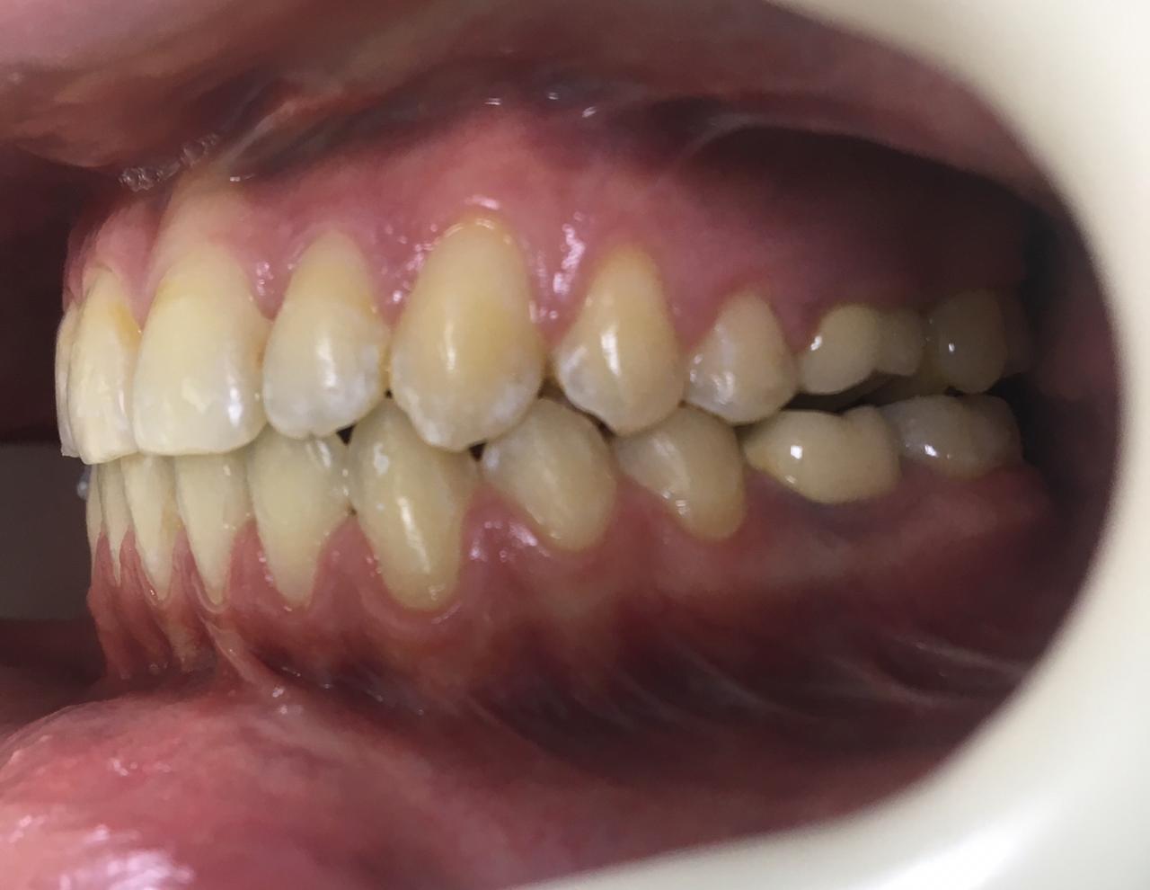 Гнатическая форма мезиальной окклюзии. Проводилось комбинированное лечение ( ортодонтия и оргонтатия). После: