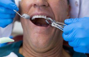 Техника удаления зуба