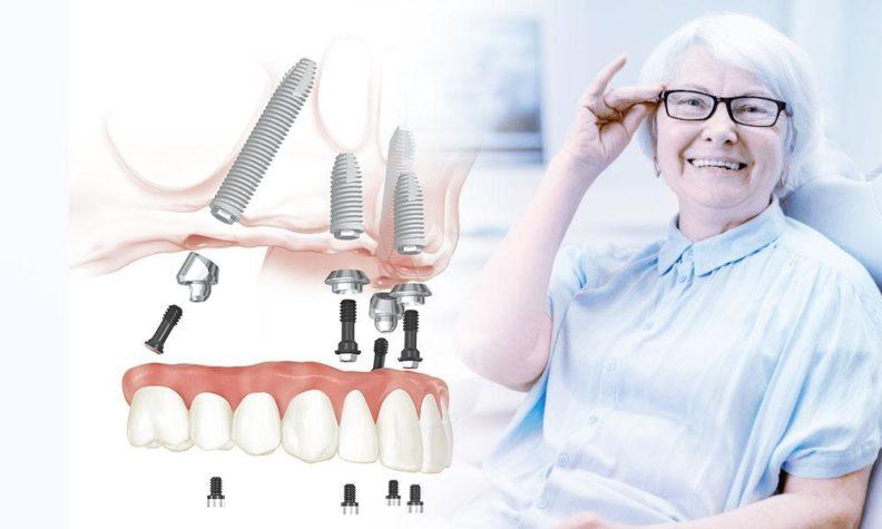 Система All on 4 и пациент в стоматологическом кресле