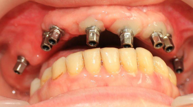 Полная имплантация зубов - верхняя челюсть