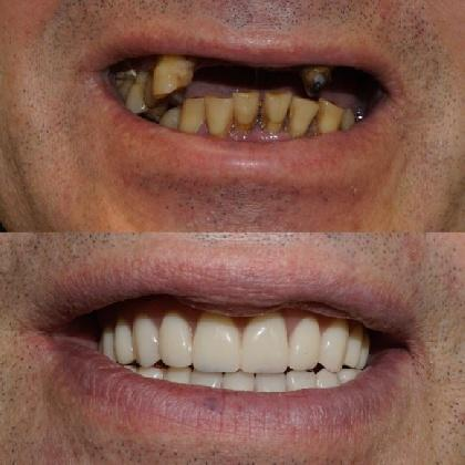 До и после классической имплантации
