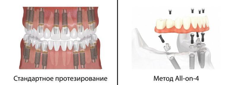Стандартное протезирование и all on 4