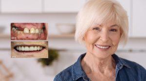 Зубы за один день после установки на пациенте стоматологической клиники