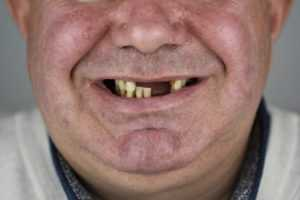 Внешний вид нижней части лица пациента