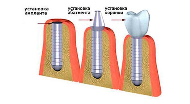 Импланты зубов